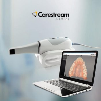 scanner-intraoral-digital-cs3600-escaner-carestream-D_NQ_NP_923126-MLA26316759307_112017-F